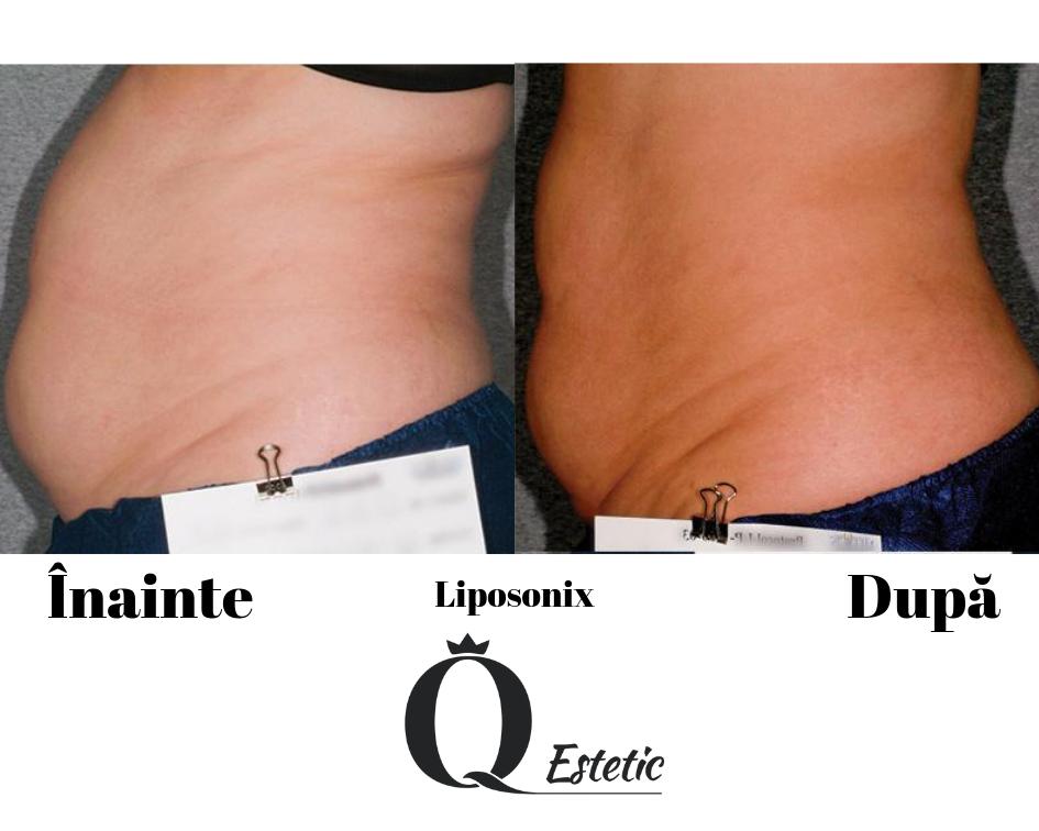 rezultate-liposonix-3