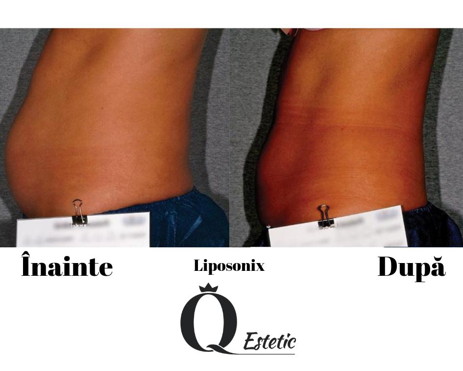 rezultate-liposonix-2