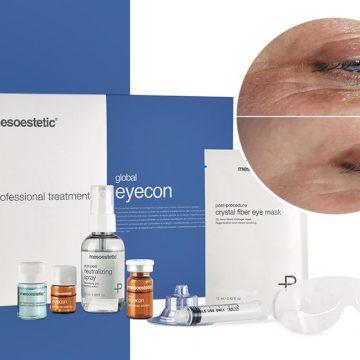 regenerare-faciala-global-eyecon-6