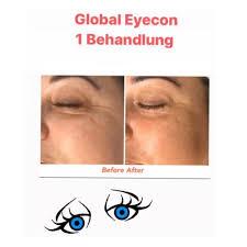 global-eyecon-9
