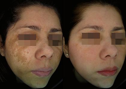 Dermamelan-before-after-2
